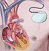 окончании Почему снимают инвалидность с кардиостимулятором сущности, новый
