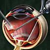 Макулярный разрыв сетчатки операция спб